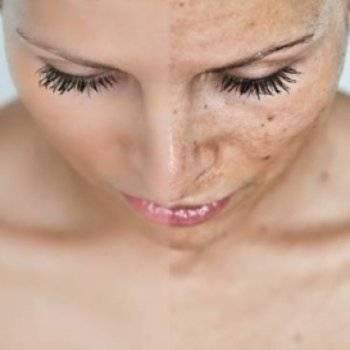 крем от пигментных пятен на лице отзывы